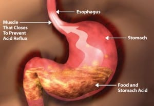 GERD - Stomach Image Showing how GERD Occurs