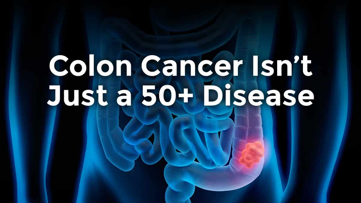 colon cancer is no longer a 50+ disease